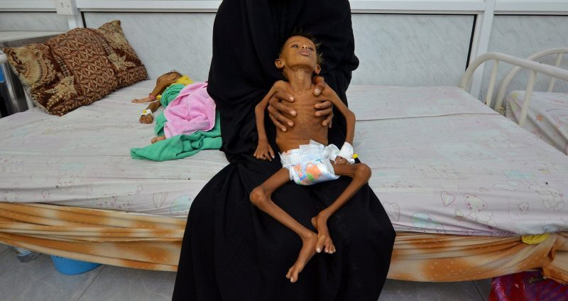 UN Warns 10 Million More Yemenis Expected to Starve to Death by End of Year